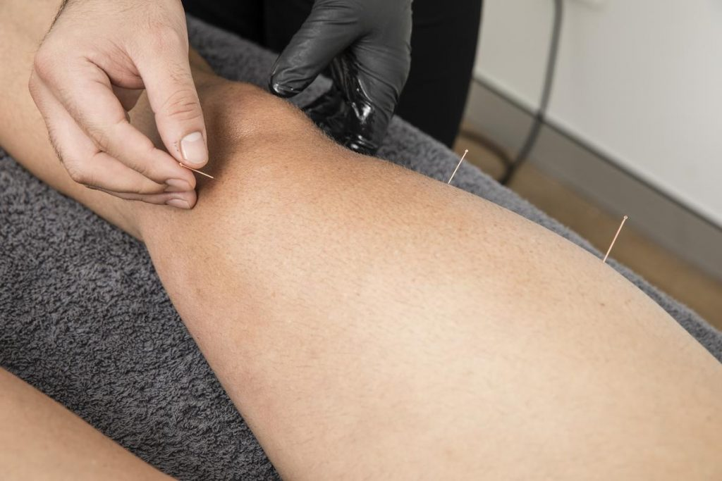Dry Needling in Castle Hill – Get Relief from Chronic Pain